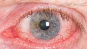 ما هي أسباب اصفرار العين